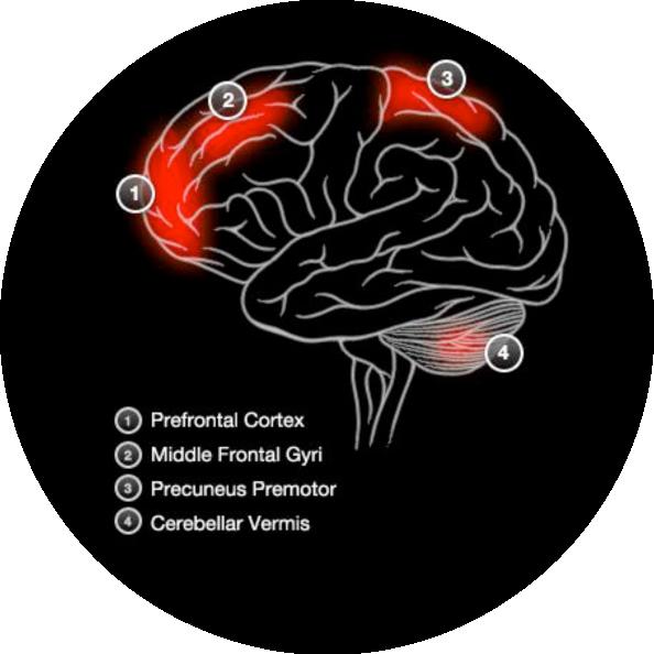 Brain Activity Verbal Memory