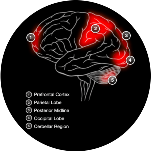 Brain Activity With Non Verbal Memory
